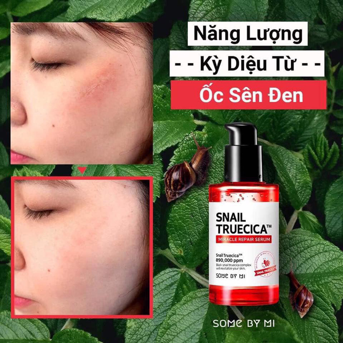 tinh chat duong some by mi snail truecica miracle repair serum 1
