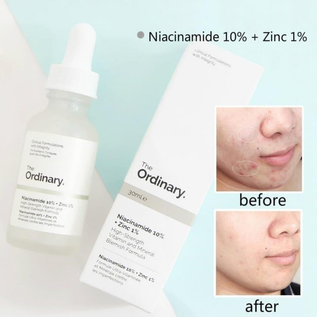serum the ordinary niacinamide